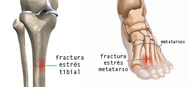 Fractura estrés tibia y metatarso