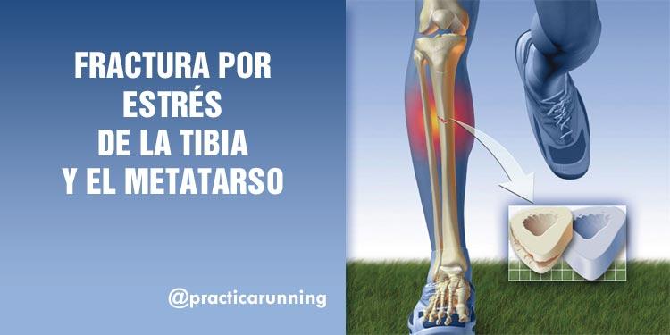 fractura por estrés en la tibia y el metatarso para corredores