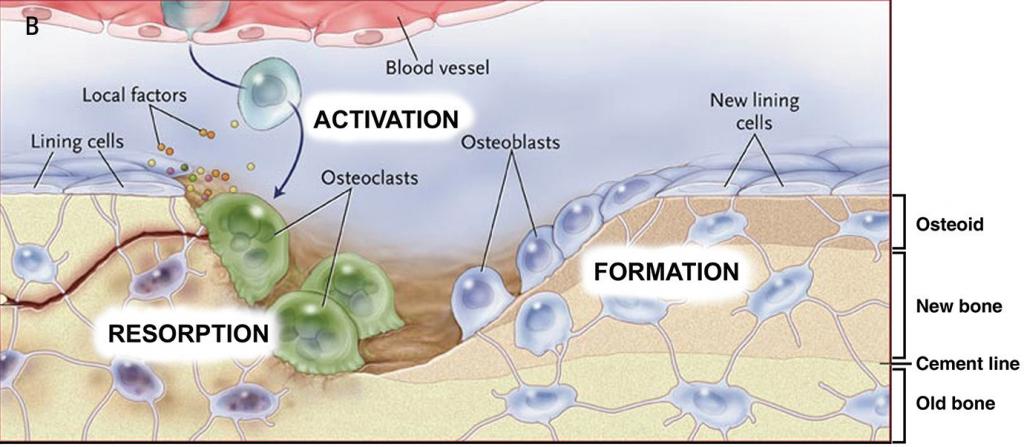 Microtraumatismos hueso